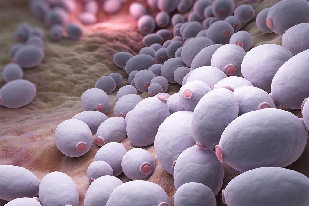 Candida albicans - Co to jest? Jak to zbadać? Jakie produkty są dozwolone, a jakich należy unikać?
