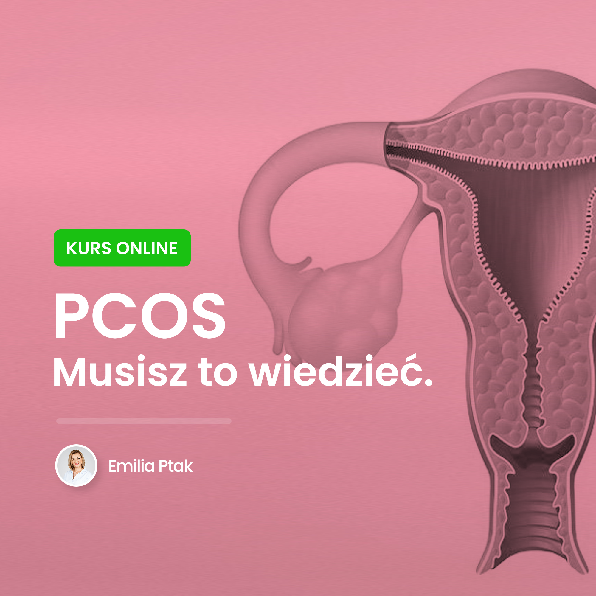 PCOS Kurs online